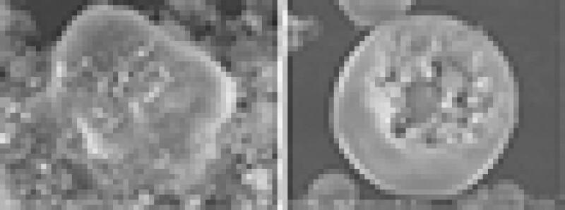 Nanopolysilicon aggregation.